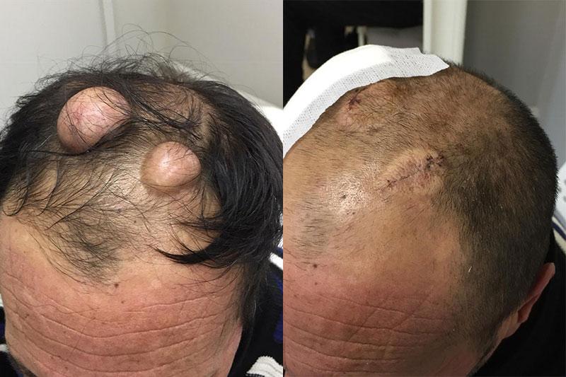 Удаление Атером волосистости части головы