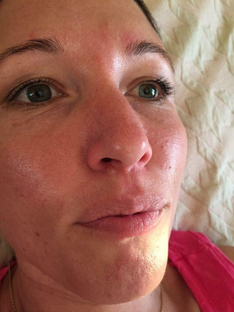 Кератома области правой ноздри